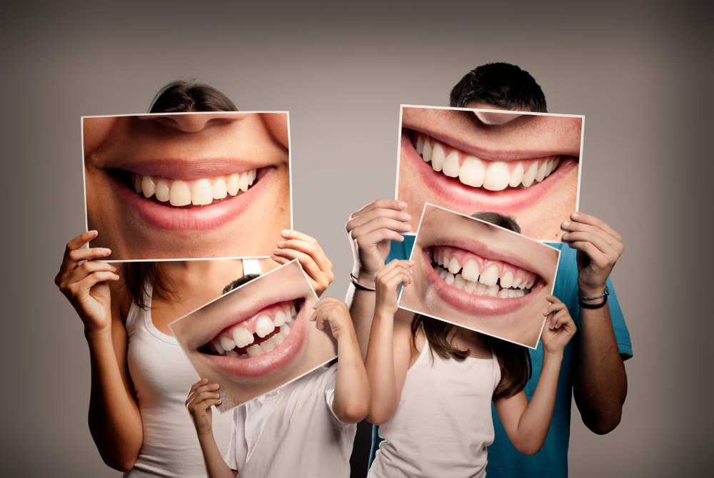 Family of Four Holding Pictures of Smiling Teeth In Front of Them